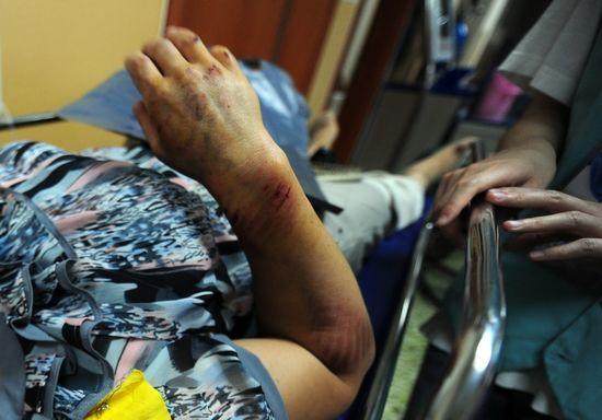 接受治疗,她的手臂留下被扶梯 挤压摩擦而出血的伤口.IC 图-北京